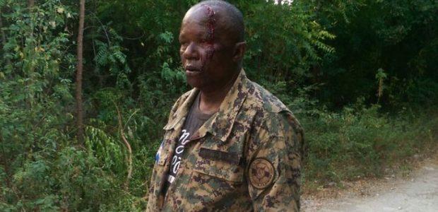 PEDERNALES.- Un grupo de haitianos agredió a un sargento mayor […]